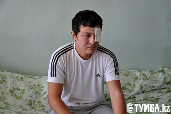 Молодой парень из Актау лишился глаза, потому что не понравился компании пьяных прохожих