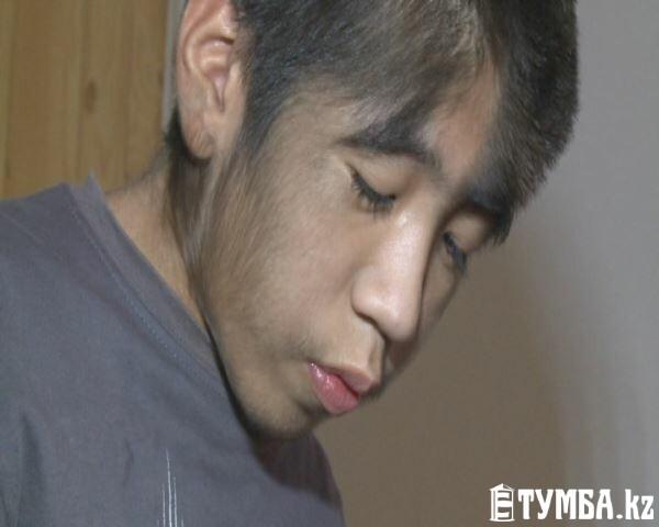 Мальчик, страдающий атавизмом, отправится на обследование в Астану